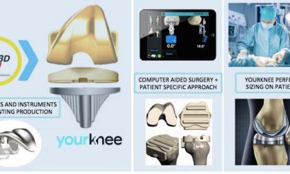 Impiantata per la prima volta al mondo una protesi di ginocchio stampata in 3D
