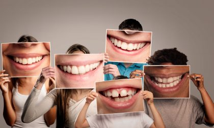 Implantologia dentale: benefici ed innovazioni