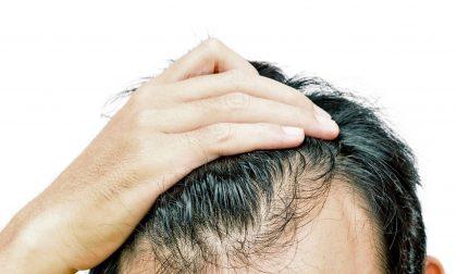 Caduta dei capelli nell'uomo, perché accade e come si risolve