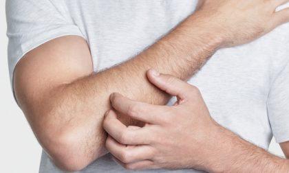 Come convivere con la psoriasi?