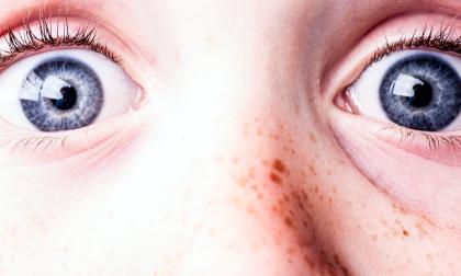 Macchie della pelle: cause, cura e prevenzione