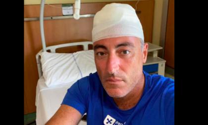 """Infortunio per Gallera mentre gioca a paddle: """"30 punti di sutura"""""""